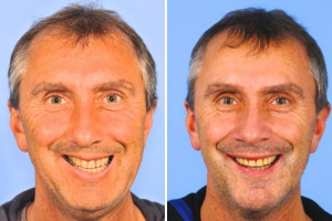 James: jaw surgery and implants -  one surgery.