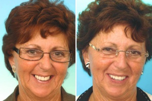 Esther: new teeth in a week - implants