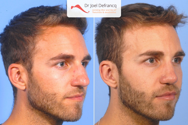 Natan: Jaw surgery before and after. Randbite. Upper jaw