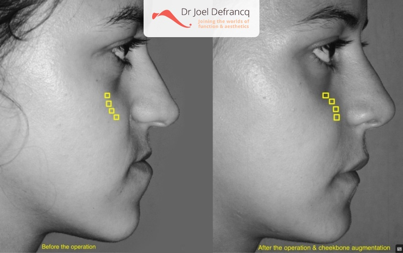 Jaw and facial surgery