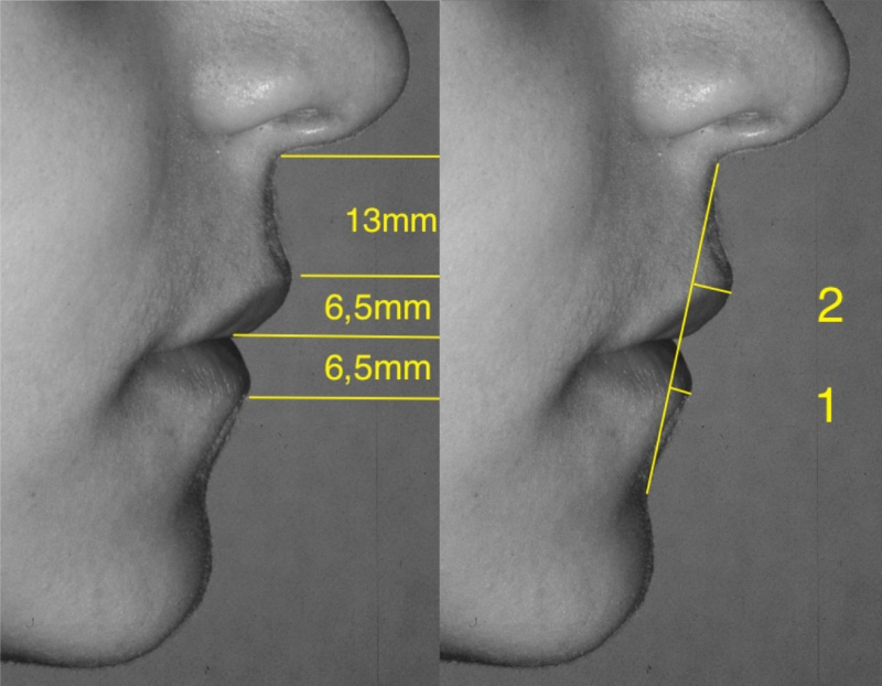 Facial Sculpture Clinic - Dr Joël Defrancq - Jaw surgery and implant reconstructive surgery