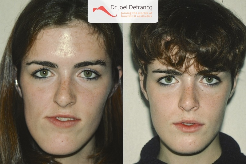 how to fix lower jaw alignment